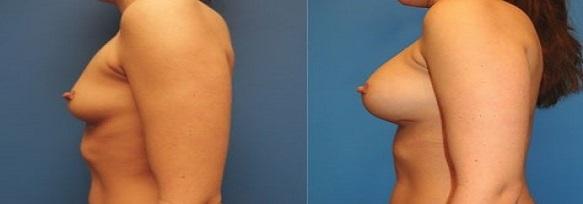 augmentation mammaire par lipofilling seins tunisie : photo avant apres
