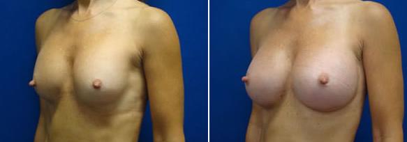 photo augmentation seins tunisie avant apres