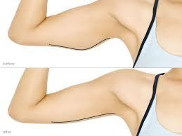 photo lifting bras tunisie avant apres