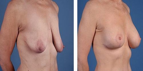 photo avant apres lifting des seins en tunisie