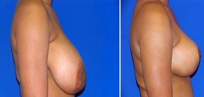 reduction mammaire en tunisie : photo avant apres