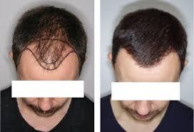 resultat greffe cheveux tunisie photo avant apres greffe capillaire