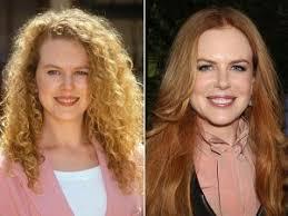 Nicole Kidman avant apres chirurgie plastique