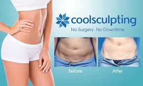 résultat CoolSculpting