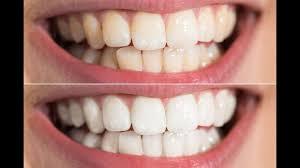 blanchir les dents pour obtenir hollywood smile