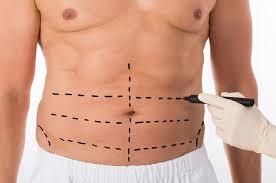 chirurgie masculine