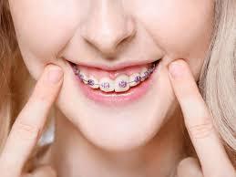 orthodontie hongrie